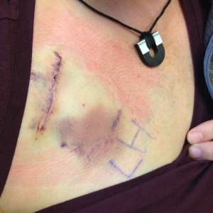 Port incision and bruise